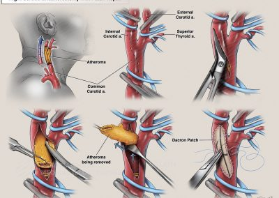 Right Carotid Endarterectomy with Patch Repair