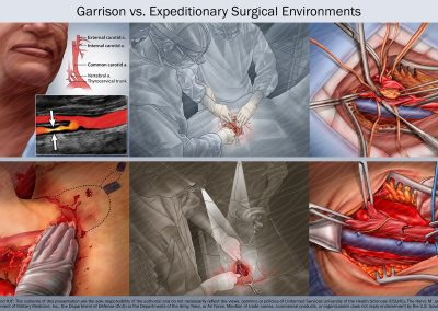 Garrison vs. Expeditionary Surgical Environments