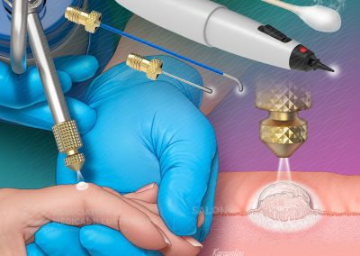 Cutaneous Cryosurgery for Skin Conditions