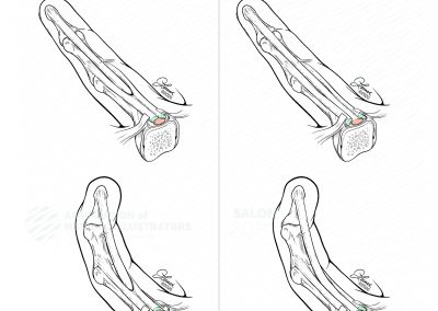 Persistent Trigger Finger Due to Tendon Subluxation