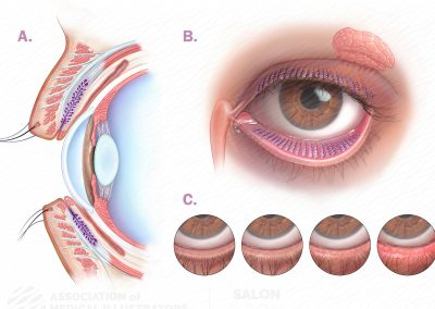 The Meibomian Gland and Dry Eye Progression