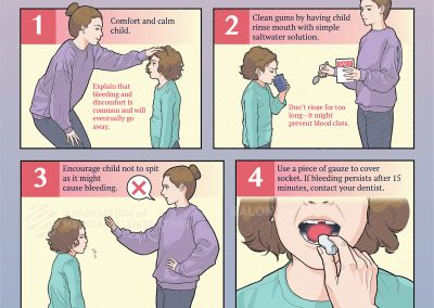 Care after Losing a Baby Tooth