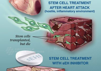 Heart attack tissue made less hostile to curative stem cells with sEH inhibitor