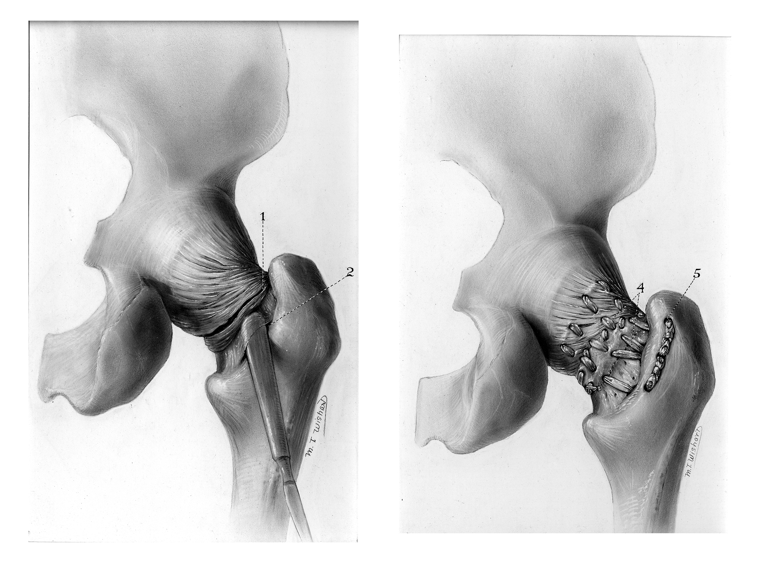 Living Sutures in Repair of Torn Hip Ligament